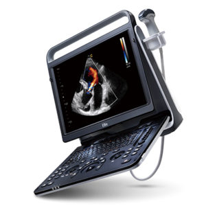 Chison EBit 60 Portable Ultrasound System