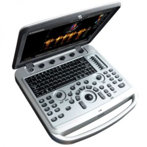 Chison SonoBook 6 Portable Ultrasound System