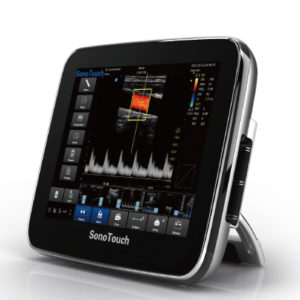 Chison SonoTouch 30 Portable Touch Screen Ultrasound System