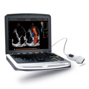 Chison Sonobook 8 Portable Ultrasound System with Probe