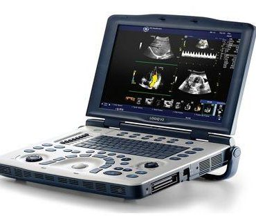 GE Logiq V2 ultrasound point-of-care for sale