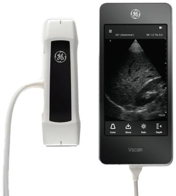 GE VScan Extend Dual Probe Point of Care Ultrasound System
