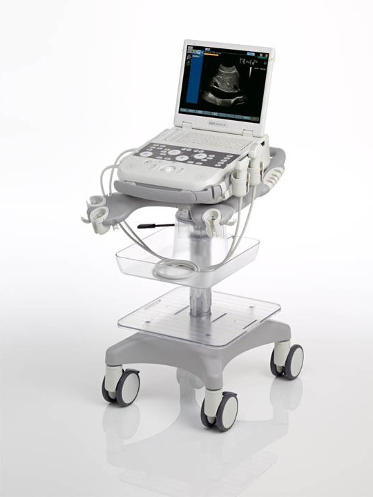 Siemens Acuson P300 portable ultrasound system for sale
