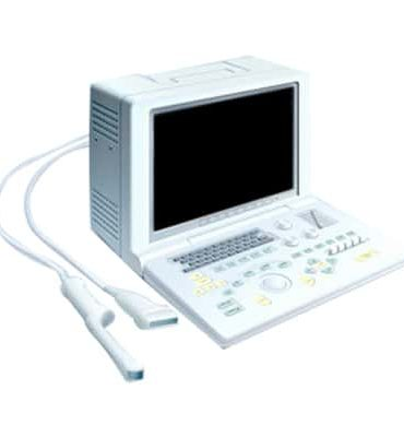 SonoScape SSI-1000 Used Ultrasound System Cheap