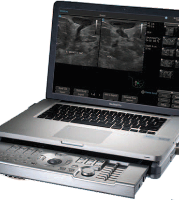 Terason t3200 portable laptop ultrasound system cheap